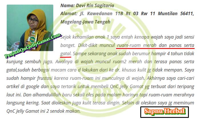 Obat Dermatitis Kontak Iritan Tradisional , TERBUKTI Manjur !!