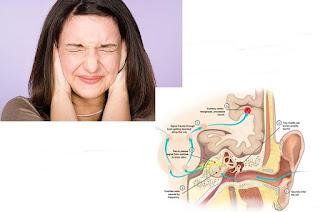 Pengobatan Untuk Mengatasi Telinga Berdengung Secara Efektif Dan Cepat