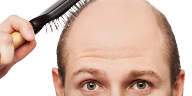 5 Myths One of the Causes of Hair Loss