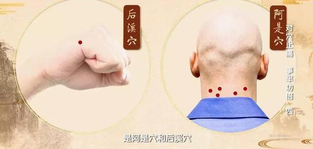 3種對穴專門針對頸椎痛、腰痛、膝蓋疼痛!(後溪、腎俞、膝眼)