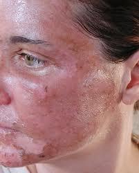 Para aclarar las manchas de la cara