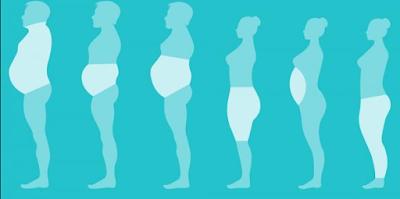 tipos de obesidades