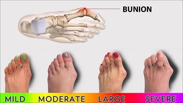 Bunion, punca dan masalah yang dihidapi oleh pesakit bunion