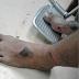 Polis Cedera Dirempuh Samseng