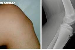 Penyakit Osgood-Schlatter (disease)
