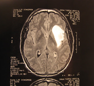 Tumeur au cerveau symptomes vertiges