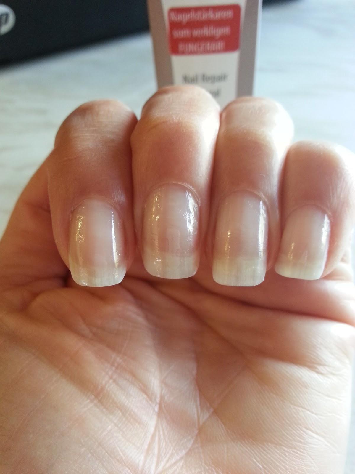 varför har man sköra naglar