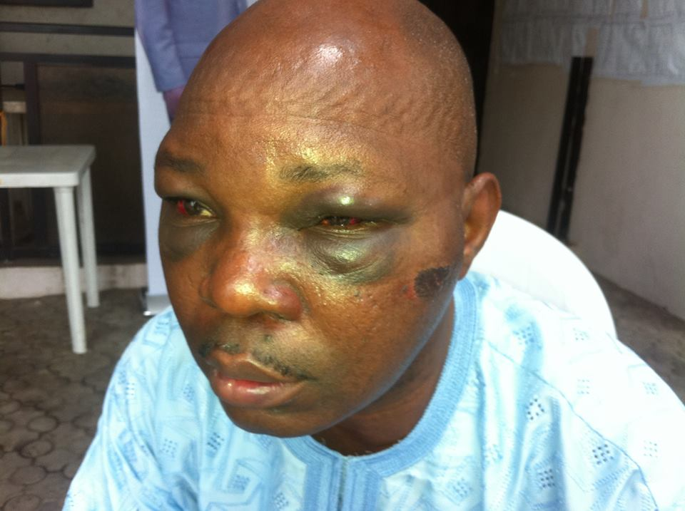 journalist beaten to coma customs seme border
