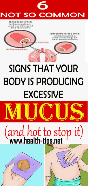 6 Signs Your Body Is Producing Excessive Mucus And How To Stop It#NATURALREMEDIES