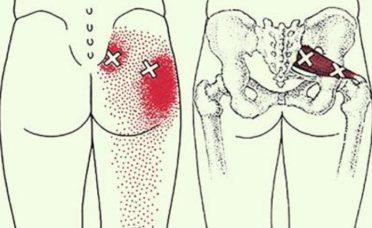 6 dicas para prevenir e aliviar a dor ciática