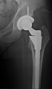 Barry Waldman MD - Hip Replacement