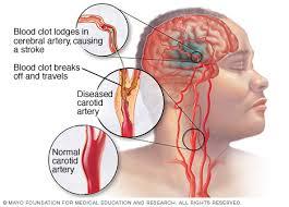 Mengatasi Penyakit Stroke Sebelah Kanan, Mengobati Stroke Ringan Di Sebelah Kanan, Pengobatan Alternatif Ampuh Stroke Ringan