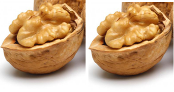 Walnuts (Akhrot - Dry Fruits) - Lip Cancer
