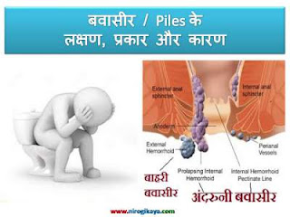 piles-bavasir-causes-symptoms-in-hindi