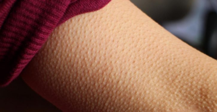 If The Music Gives You Goose Bumps