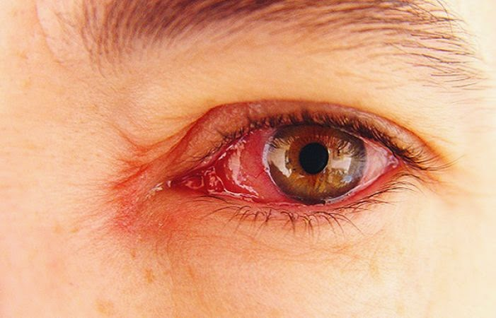 Penyebab Mata Merah