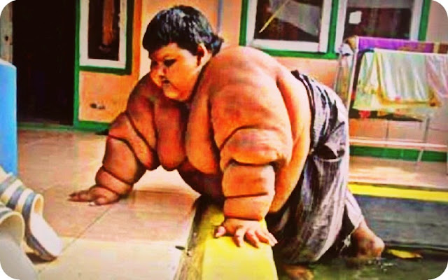Berat Badan Arya Permana Turun Menjadi 186 kg