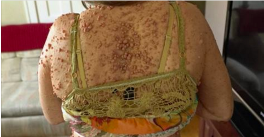 Libby vit un cauchemar: depuis l'âge de 5 ans, elle vit avec des milliers de petites tumeurs sur l'intégralité de son corps (vidéo)