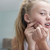 Acne As A Young People Disease