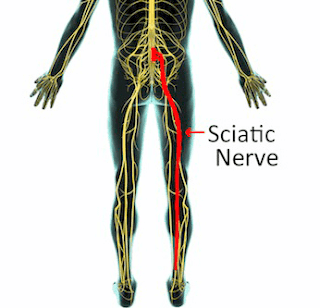 Ayurvedic treatment of Sciatica in nashik ayurvedanashik.com