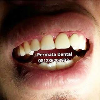 gambar foto yang memakai gigi palsu permanen bridge metal porselen