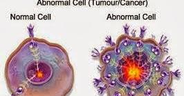 Cara Mengobati Penyakit Tumor Secara Tradisional | Des My ...
