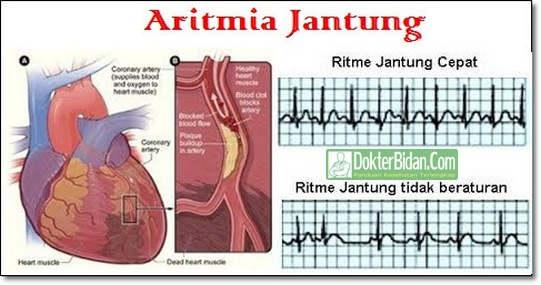 Aritmia Jantung Arrhythmia Cardiaa Ansia - Penyebab Gejala Dan Cara Mengobatinya