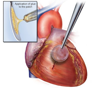 Obat jantung koroner tradisional