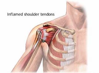 Tendinitis on the Shoulder - El Paso Chiropractor