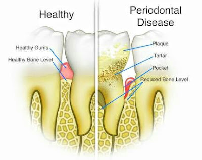 Freedom From Dental Disease - Tested and Proven