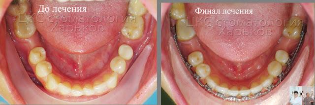 Зубы до лечения и в финале ношения брекетов
