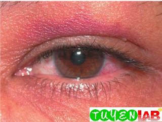 Traumatic iritis (anterior uveitis) after being hit in the eye with a baseball