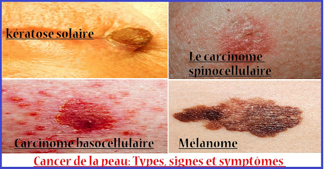 Cancer-de-peau-Types-signes-symptomes