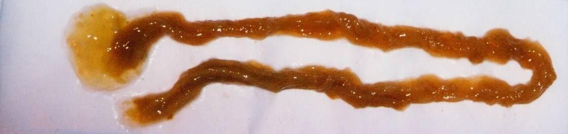Quali sono i sintomi dei vermi intestinali e come riconoscerli