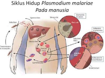 gejala-penyakit-malaria
