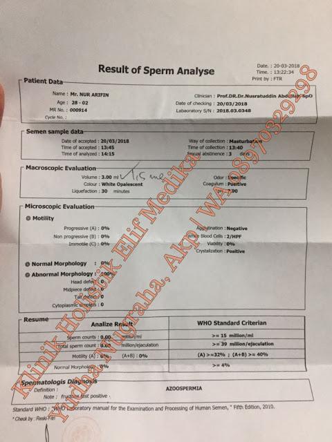 Sebelum Pengobatan : Analisa sperma Azoospermia