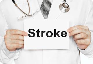 Terapi Untuk Mengobati Gejala Stroke Ringan