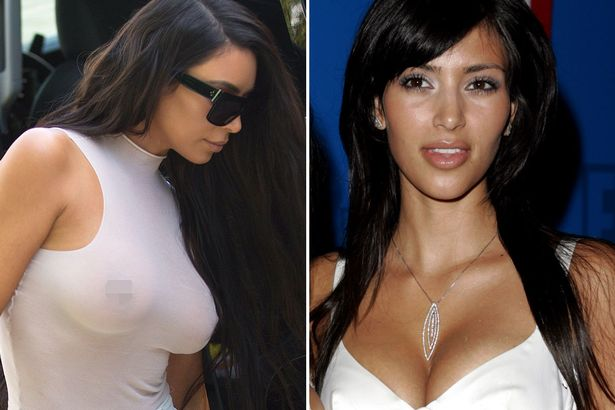 Kim is rumoured to have had at least two boob jobs, although she's never confirmed them