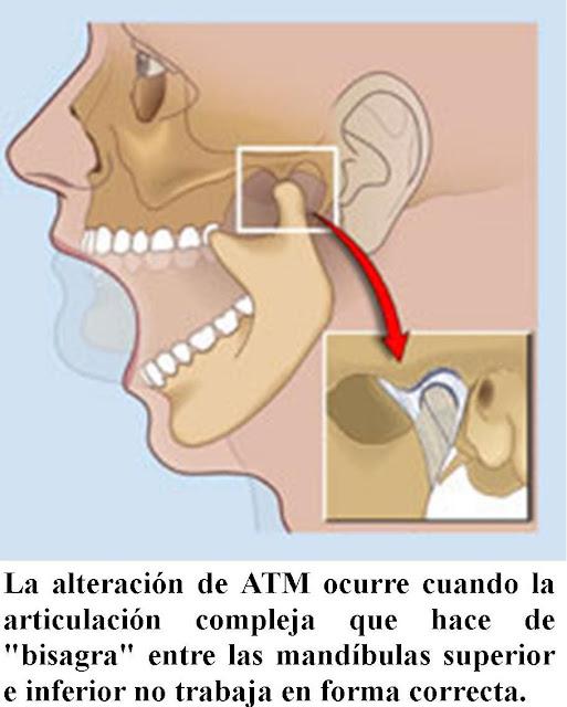 Protruziya del departamento de pecho y lumbar