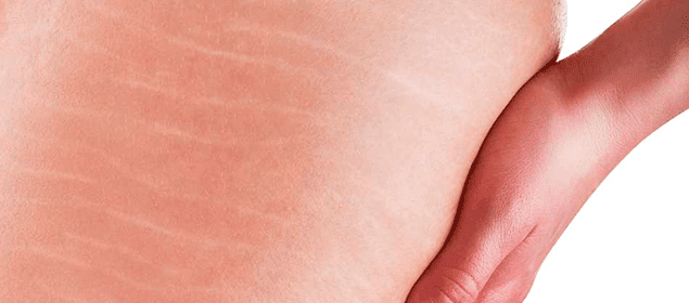 cómo eliminar las estrías