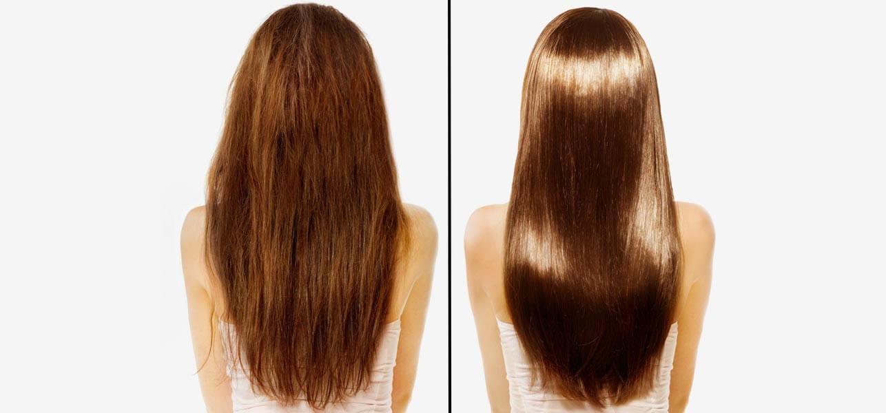 Les meilleurs moyens pour le traitement de la chute des cheveux