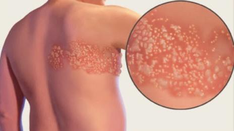 Harga Nama Salep Obat Herpes Di Apotik Paling Ampuh Lengakap
