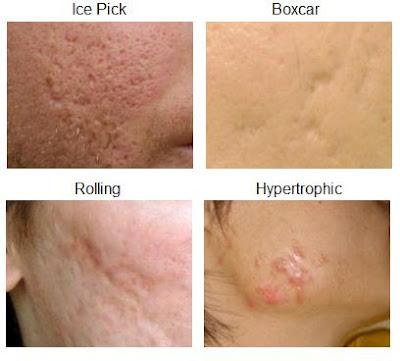 Sẹo mụn và cách điều trị hiệu quả
