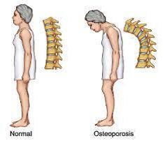 ओस्टियोपोरोसिस रोग
