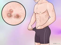 Obat Gatal-Gatal Di Kemaluan