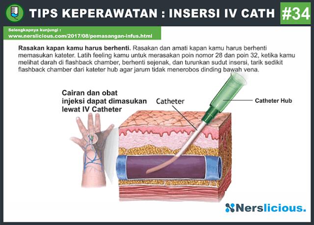 Nerslicious Pemasangan Infus