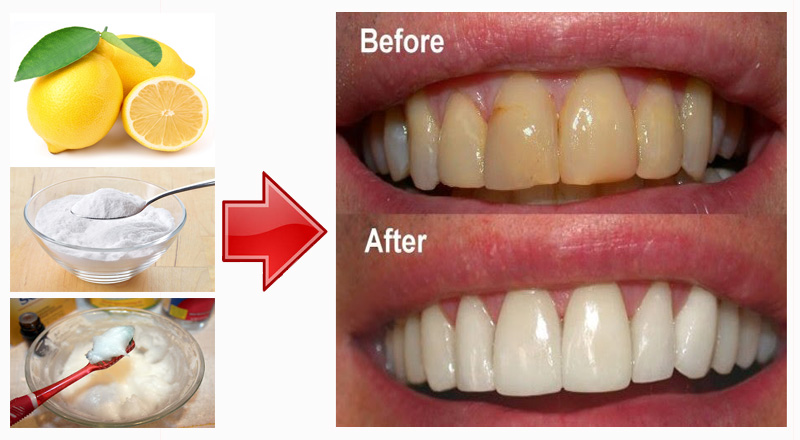 Cara Bikin Gigi Putih Naturalrugs Store