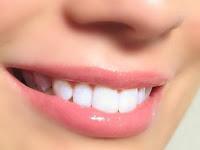 Cara mencegah bibir pecah-pecah