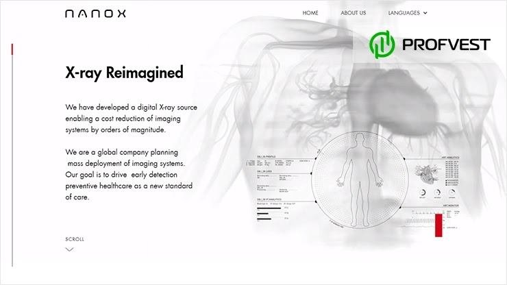 IPO от компании Nano-X Imagine перспективы и возможность заработка