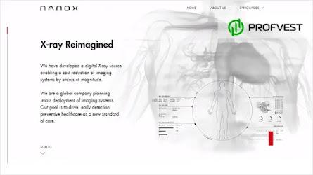 😀IPO от компании Nano-X Imagine: перспективы и возможность заработка